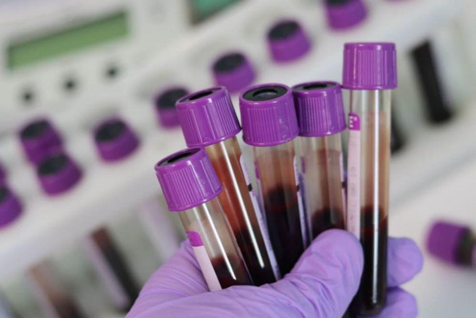 Sundhedsansatte testes for covid-19